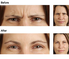 Before and After Botox Photos