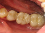 Replaced Missing Tooth with Permanent Dental Bridge