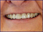 Smile Restored with Porcelain Crowns at Our Gettysburg Dental Office