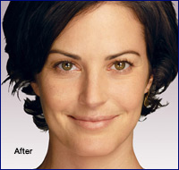 After Juvederm Treatment