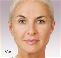 After Juvederm Cosmetic