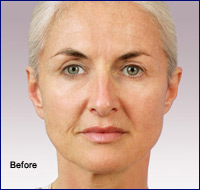 Before Juvederm Cosmetic
