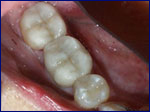 Repaired Tooth with Porcelain Onlay