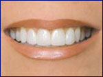 Smile Restoration with Porcelain Veneers
