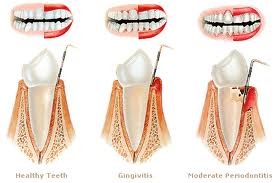 gum disease dentist