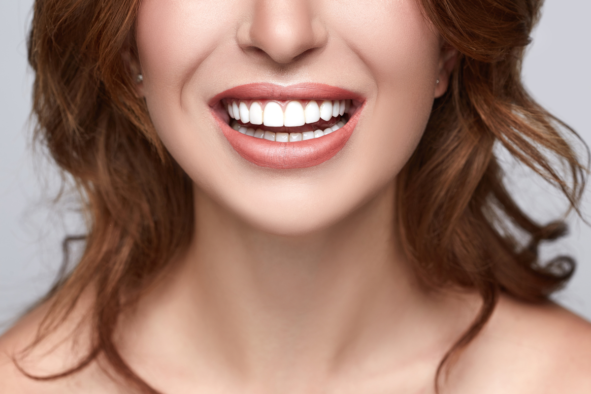Are Dental Veneers and Implants Tax Deductible? | Samuels Dental Arts PC