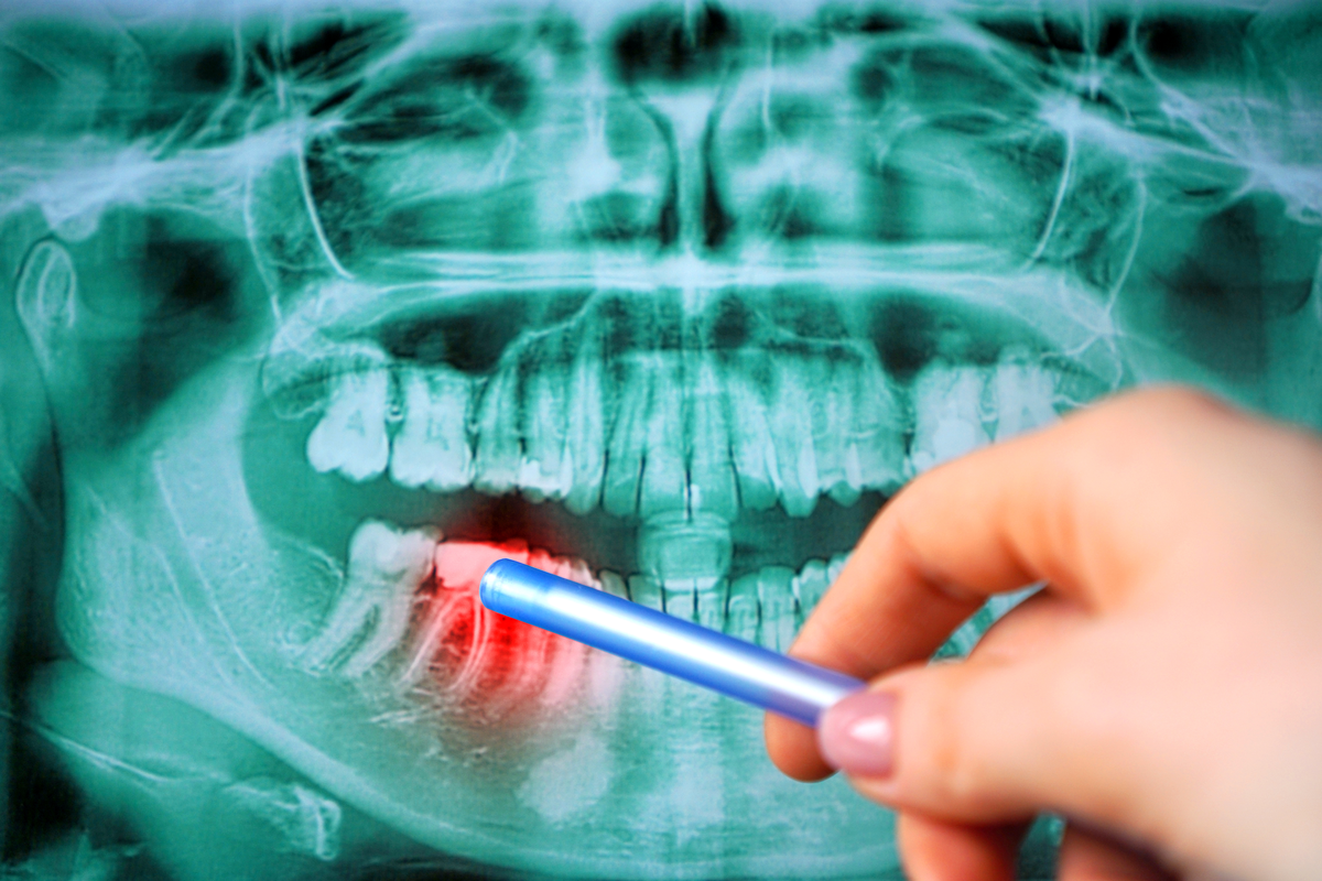 Are there Dentists Who Focus on Working with Patients with Widespread Dental Damage? | Samuels Dental Arts