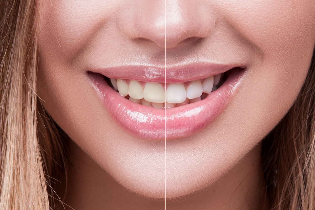 Can My Teeth Be Whitened? | Samuels Dental Arts