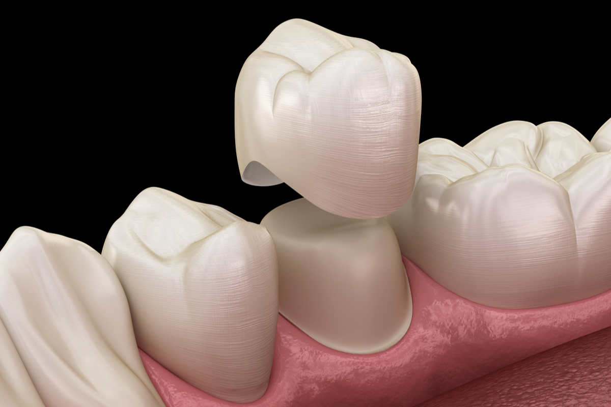 Dental Crowns.  How Do You Know You Might Need One? | Samuels Dental Arts PC