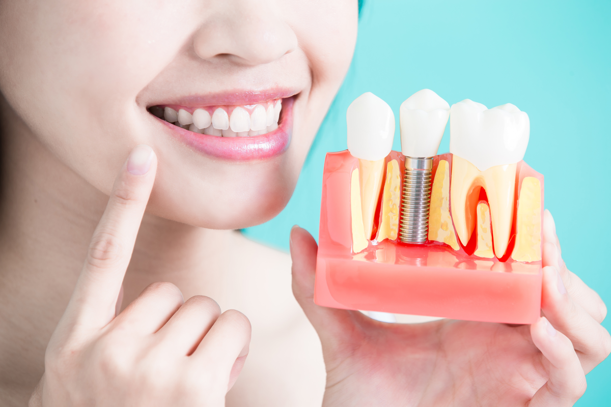 Dentures Can Restore Lost Function and Facial Structure | Samuels Dental Arts