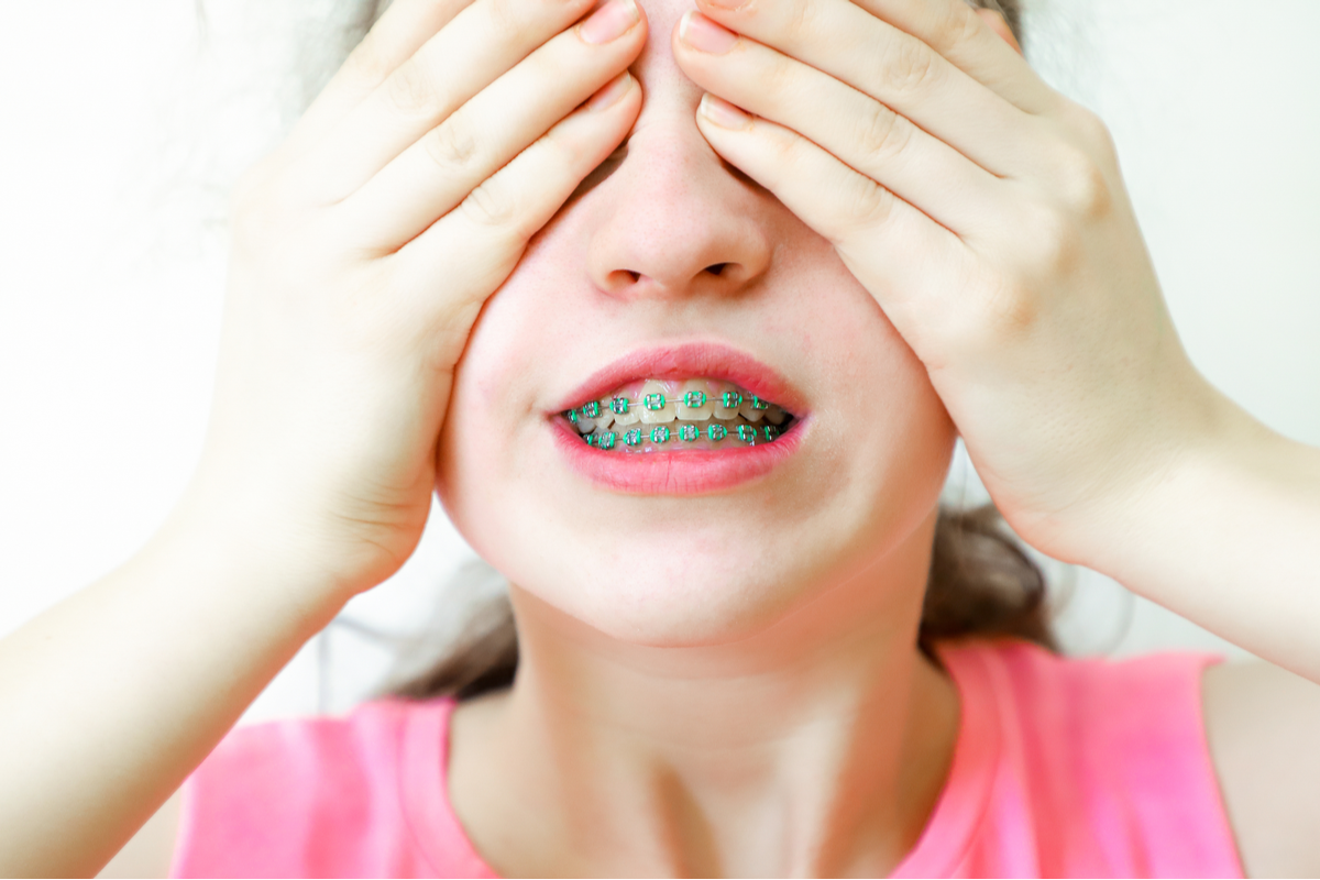 Do Not Let Embarrassment Prevent You from Getting the Dental Services You Need   Samuels Dental Arts