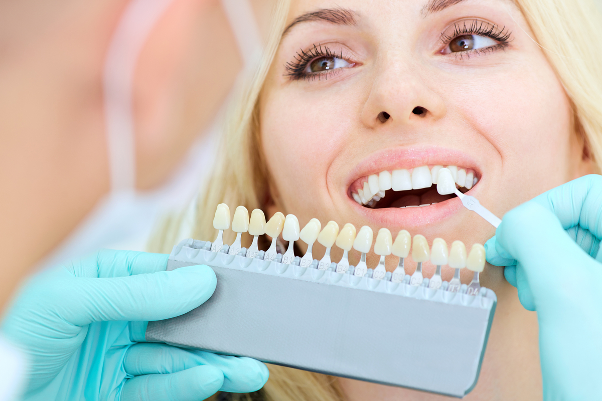 Everything You Wanted to Know About Dental Implants | Samuels Dental Arts PC