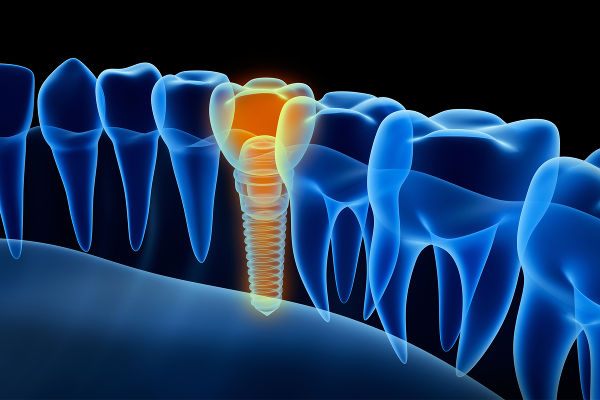 Gettysburg Implant Dentist Discusses Dental Implants | Samuels Dental Arts PC