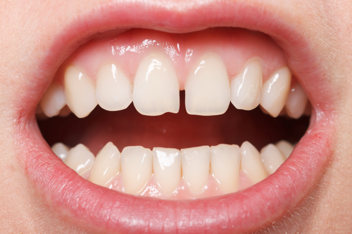 Got A Gap In Your Smile? Dental Implants To The Rescue! | Samuels Dental Arts PC