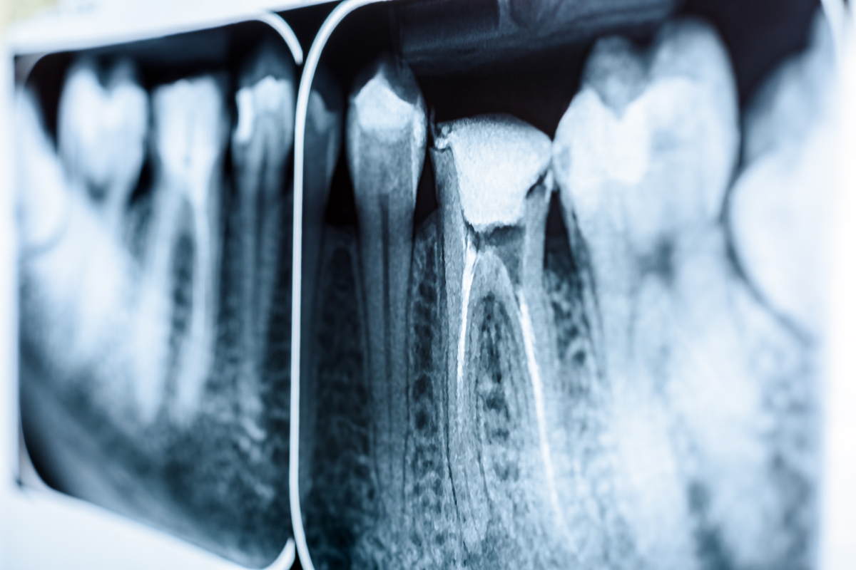 I'd rather have a Root Canal Than…(fill in blank!) Root Canal Treatment In Gettysburg | Samuels Dental Arts PC