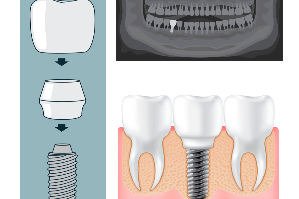 Is Tooth Replacement a Complicated Process?   Samuels Dental Arts
