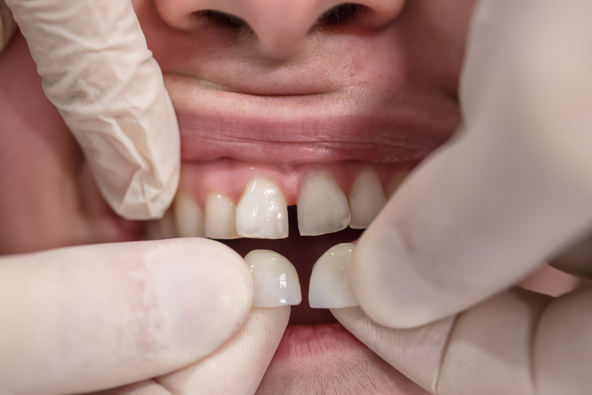 Missing Teeth_ Consider These Three Tooth Replacement Options | Samuels Dental Arts