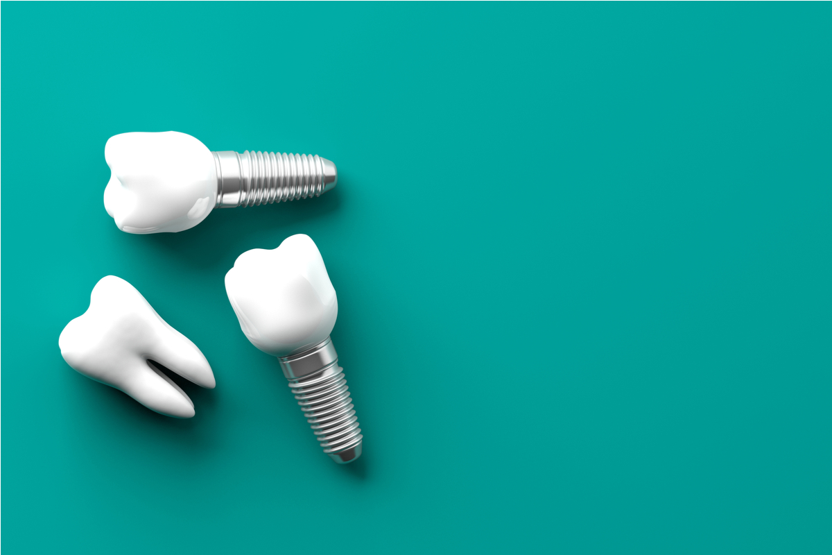 Need Teeth?  Implant options are HUGE... | Samuels Dental Arts PC