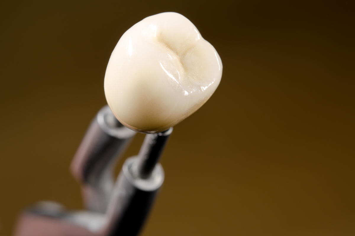 A Different Kind of Crown | Samuels Dental Arts P.C.