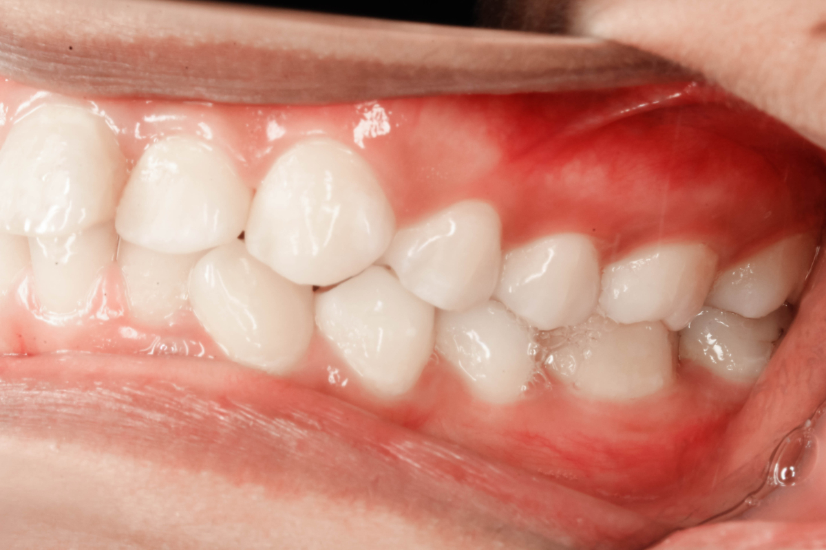 Health Risks Related to Gum Disease | Samuels Dental Arts PC