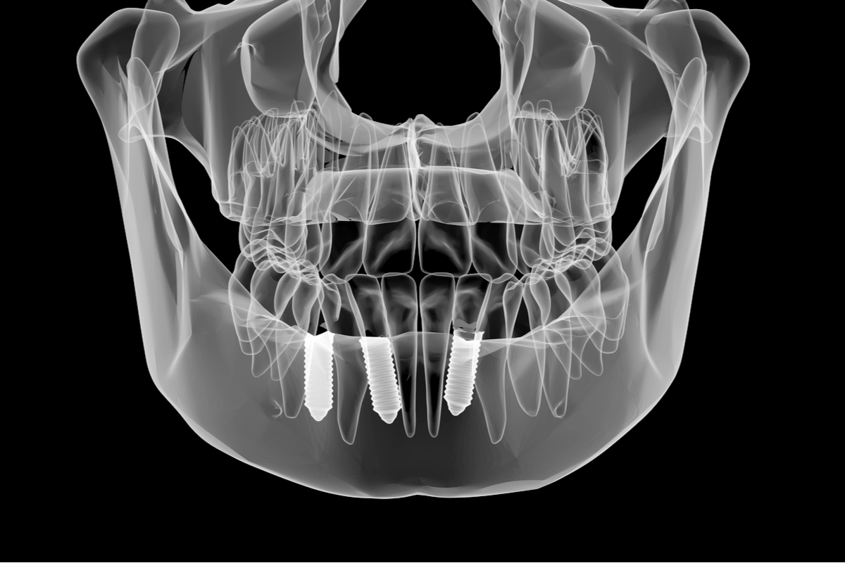 Are Dental Implants a Permanent Solution for Tooth Loss? | Samuels Dental Arts