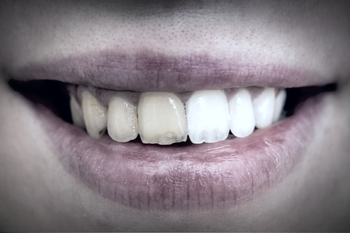 Are My Teeth Too Far Gone to Benefit from Cosmetic Dental Procedures? | Samuels Dental Arts