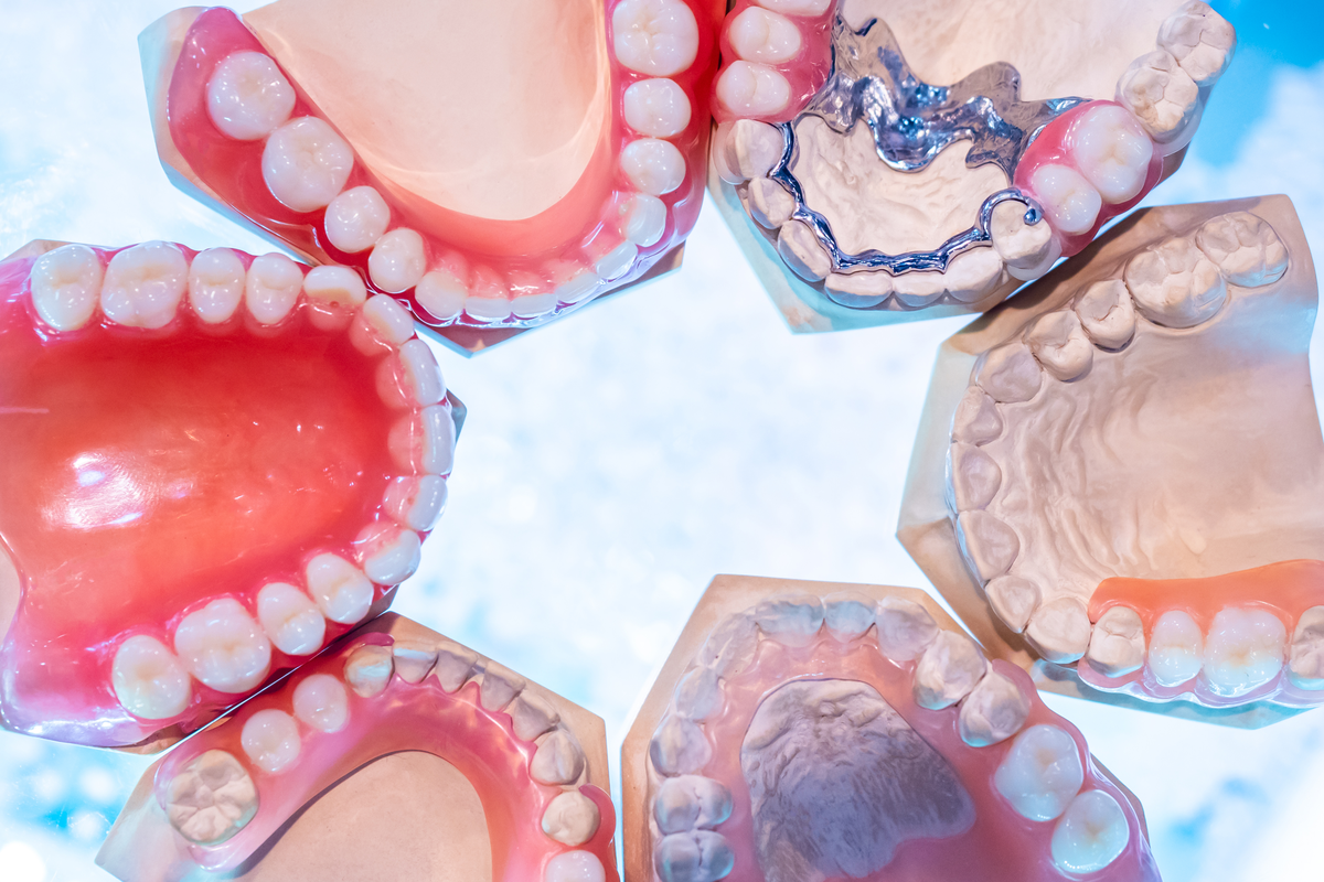 Dentures or Implants: Which is Right for Me?