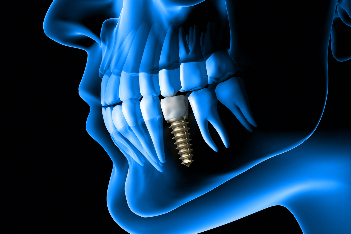 Facts You Need to Know if You are Considering Dental Implants | Samuels Dental Arts