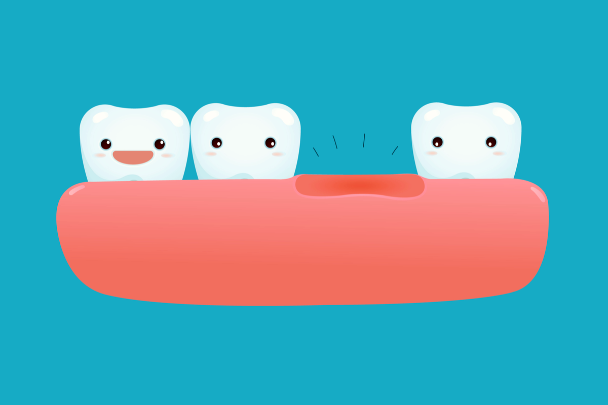 Situations Where Dental Implants are the Best Option | Samuels Dental Arts