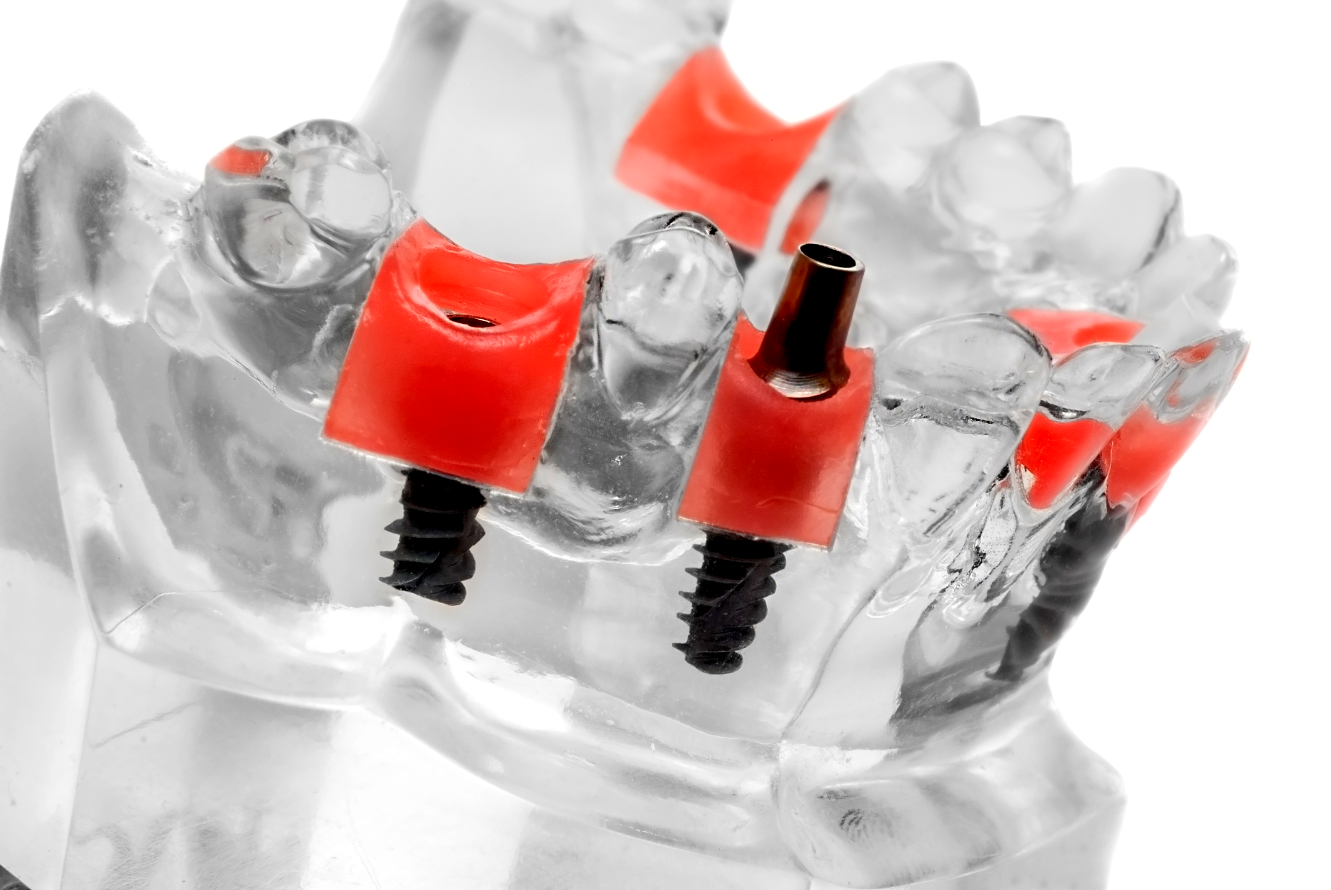 Dental Implants, Permanent Bridges, and Dentures: Which is best for me?
