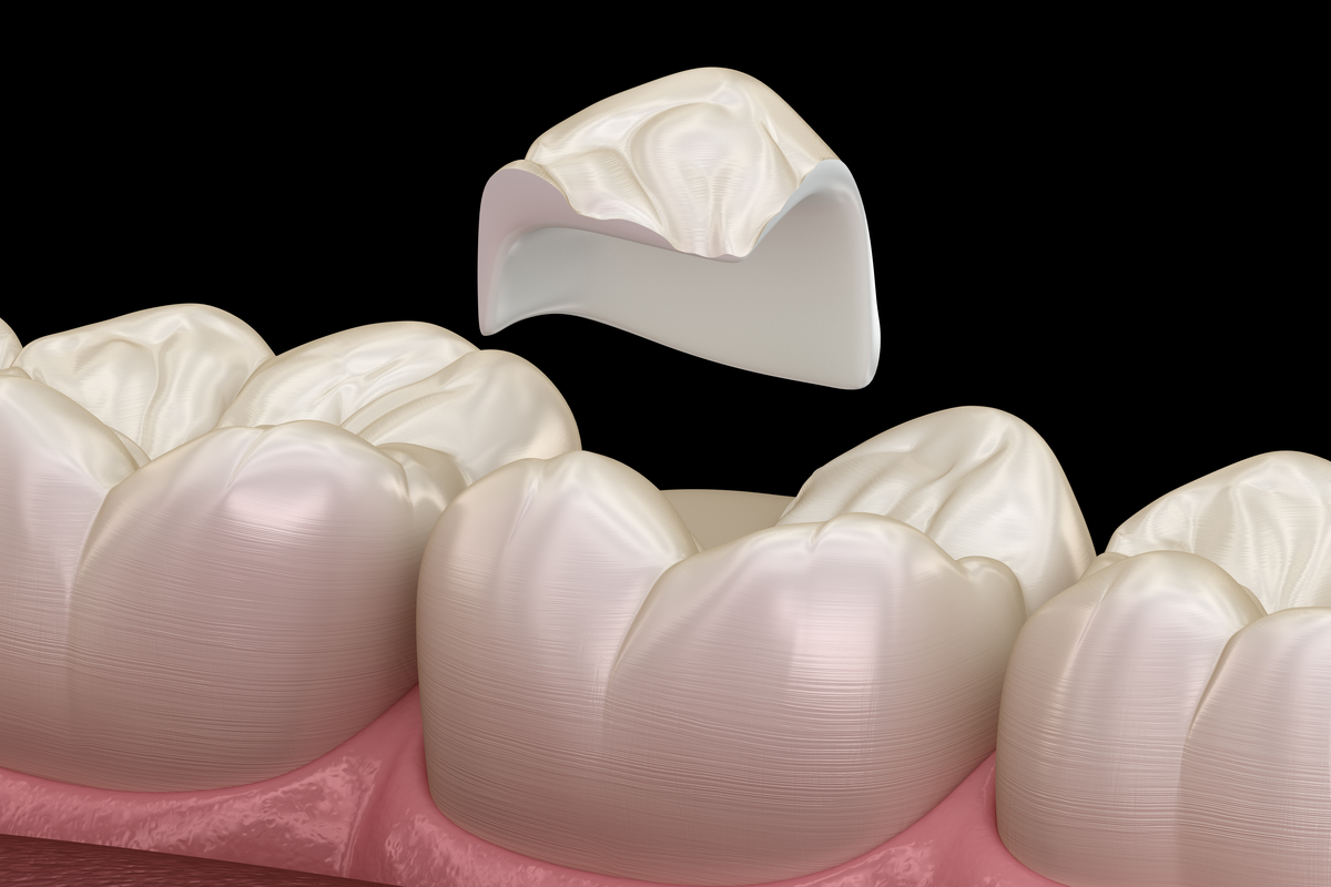 Who Can Benefit from Porcelain Onlays?