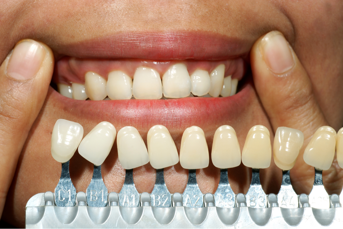 Three Facts You Need to Know Before Getting Dental Implants | Samuels Dental Arts