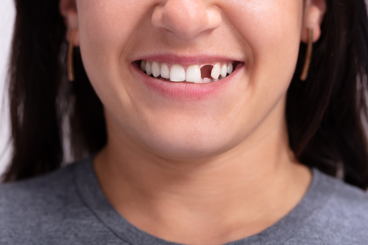 Tooth Replacement Options to Restore Your Smile | Samuels Dental Arts