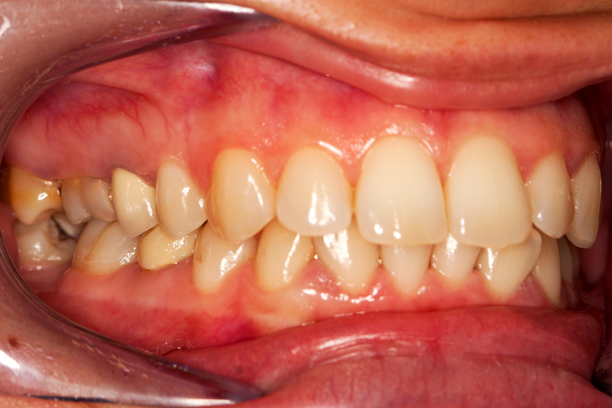 What You Should Know About Periodontal Disease Before It's Too Late | Samuels Dental Arts PC