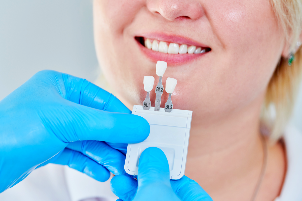 What to Expect at Your First Visit with a Prosthodontist | Samuels Dental Arts