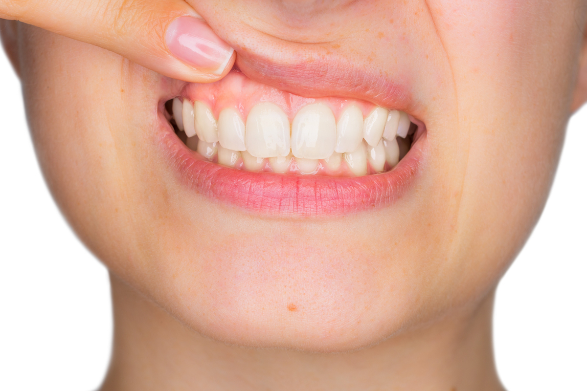 What's Up With My Gums? | Samuels Dental Arts PC