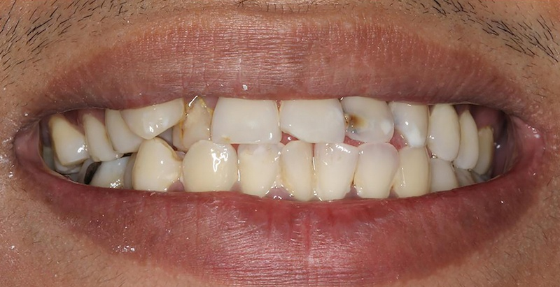 Porcelain Veneers Before | Samuels Dental Arts