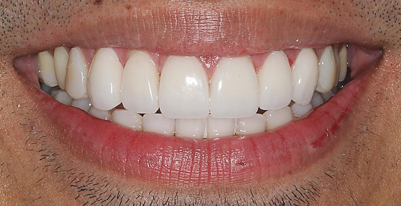 Porcelain Veeners After | Samuels Dental Arts, P.C.